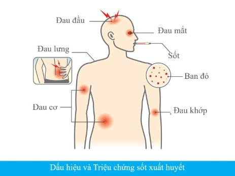 Các dấu hiệu của bệnh sốt suất huyết