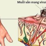 muỗi vằn truyền bệnh sốt xuất huyết