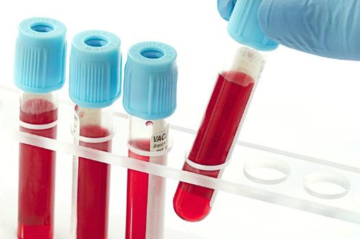 Xét nghiệm máu thường xuyên 2-3 ngày/lần để kiểm tra tiểu cầu giảm hay không