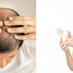 Tình trạng rụng tóc nhiều ở cả nam và nữ ngày một gia tăng, gây mất tự tin