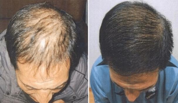 Tinh dầu bưởi giúp tóc mọc dày hơn
