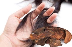 Trị rụng tóc bằng hà thủ ô